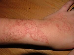 Allergie au Tatouage-henné
