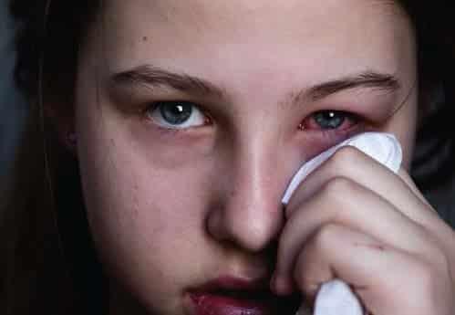 Les allergies des yeux : la conjonctivite